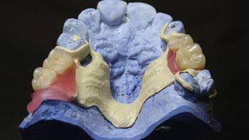 fresado-protesis-5-ejes