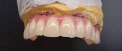 implantosoportada-A2