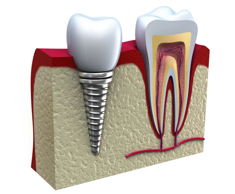 tratamiento-de-implante-dental